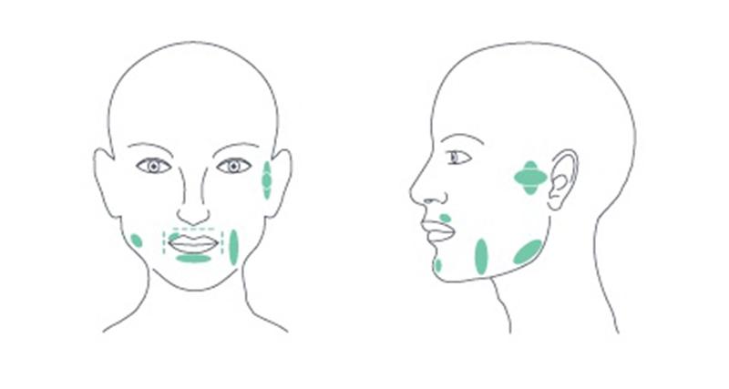 Terápiás pontok B-Cure lágylézer kezeléshez fogászati panaszokra