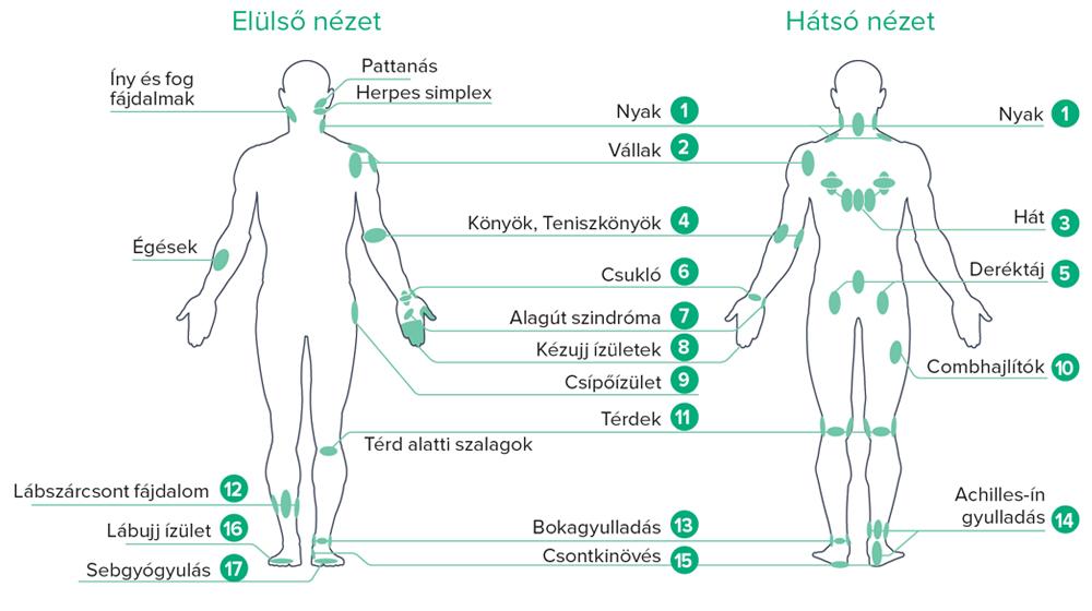 Terápiás pontok B-Cure lágylézer kezeléshez általános panaszokra