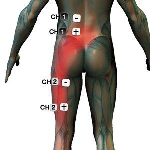 Isiász fájdalom kezelése speciális elektróda felhelyezési pozíciót igényel