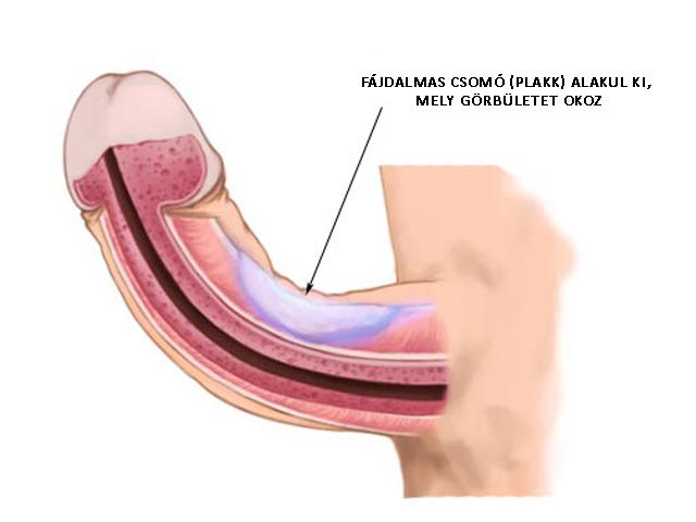 A Peyronie betegség különböző mértékű görbületet okoz a péniszen