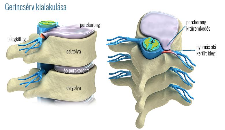 A gerincsérv kialakulása