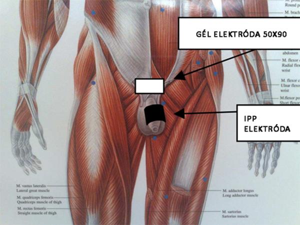 Az IPP elektróda használata Peyronie betegségben