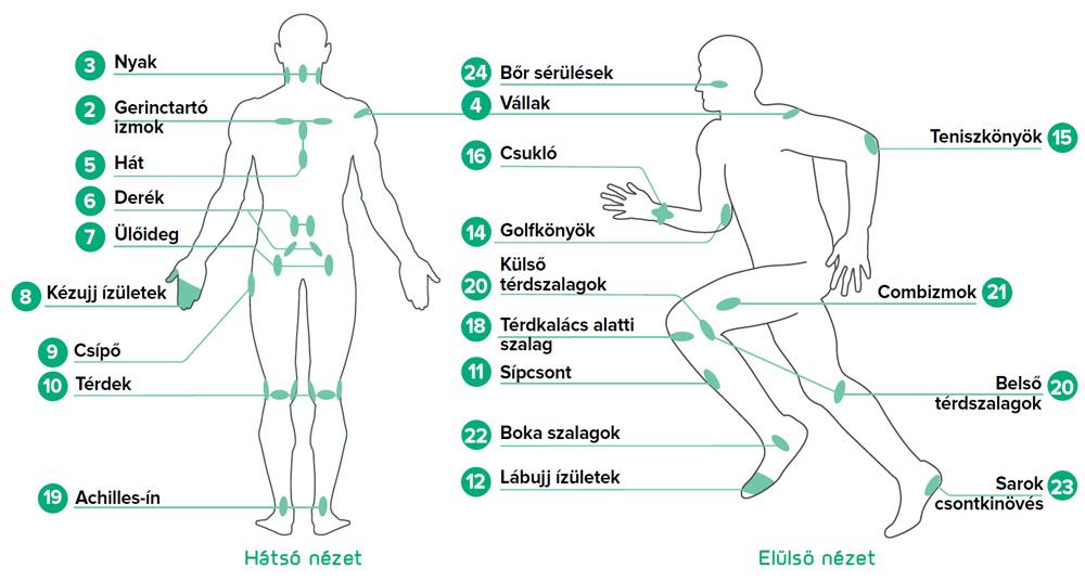 Terápiás pontok B-Cure lágylézer kezeléshez sportsérülésekre